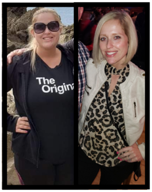 Kourtney Wittmaack before and after weight loss surgery